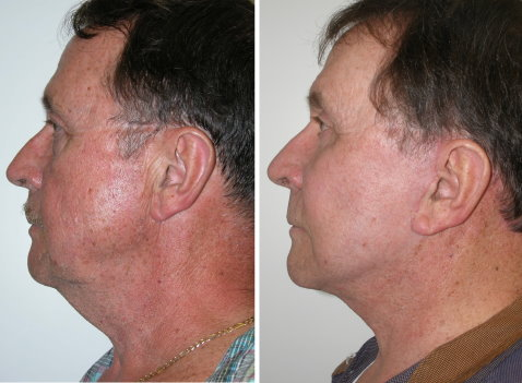 Lets See How Plastic Surgery Helps Men In Different Ages